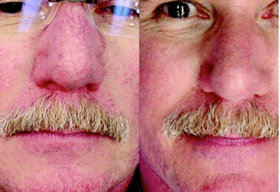 ipl photo rejuvenation plymouth meeting